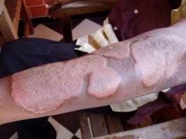 Longuent salicylique au psoriasis des ongles des mains